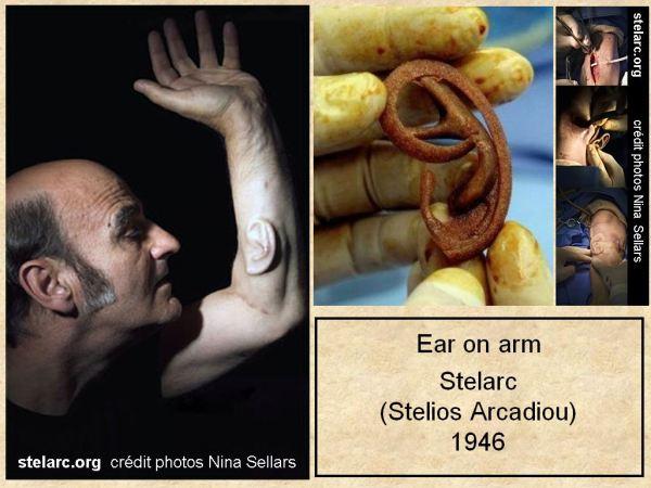 Stelarc_Ear on arm