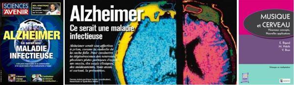 Alzheimer Sc&Av et Bigand
